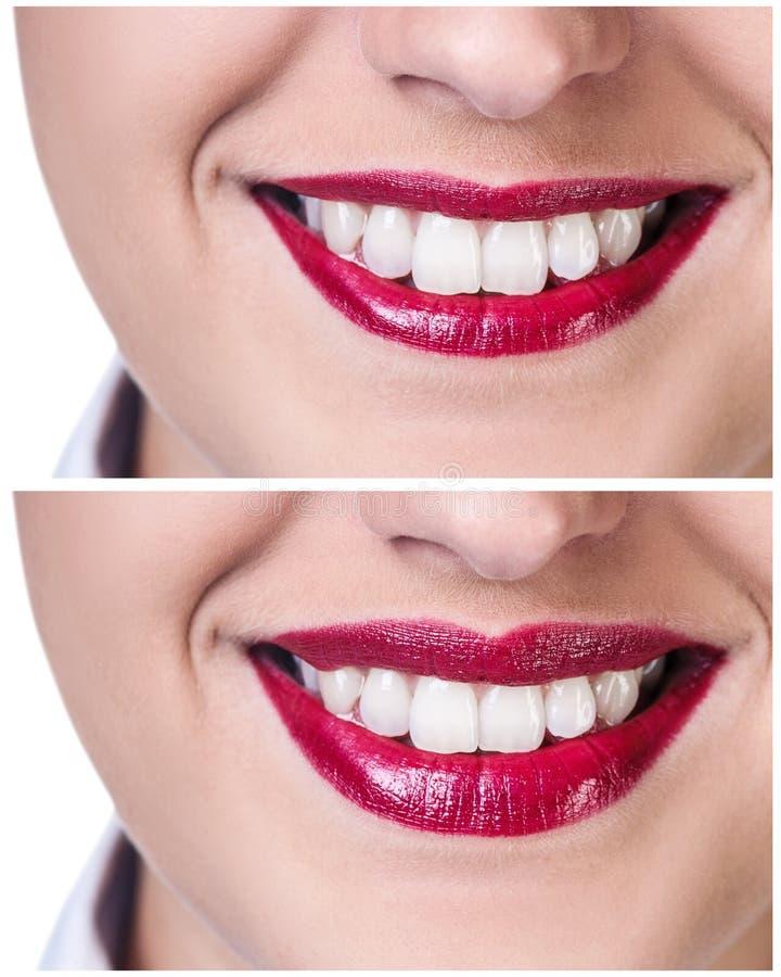 Labios antes y después de inyecciones del llenador foto de archivo