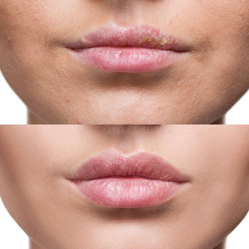 Labios con herpes antes y después del tratamiento imágenes de archivo libres de regalías