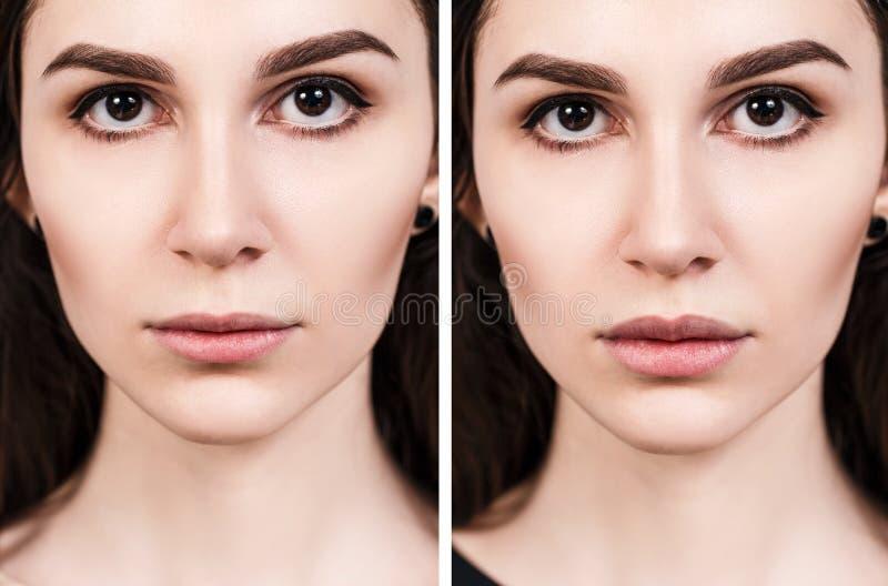 Labios de la mujer joven antes y después del aumento imágenes de archivo libres de regalías