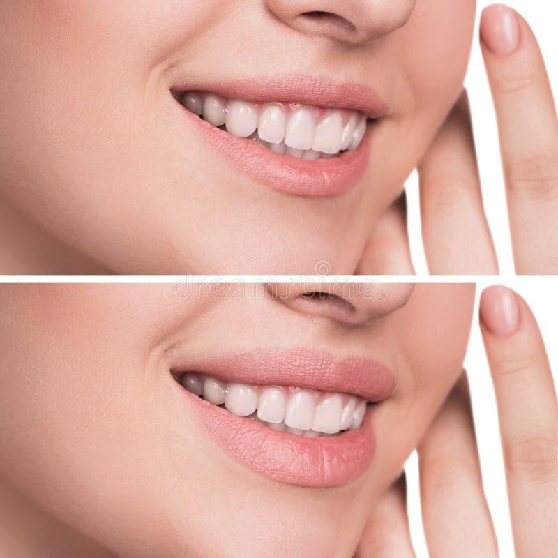 Labios femeninos antes y después del aumento imagen de archivo