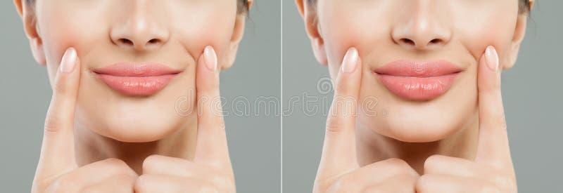 Labios femeninos Labios de la mujer antes y después de inyecciones del llenador del labio foto de archivo libre de regalías