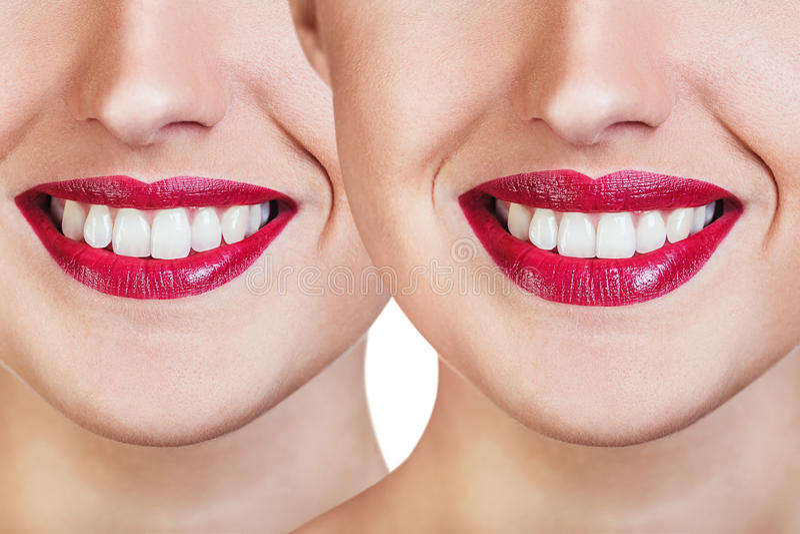 Labios rojos antes y después de inyecciones del llenador imagen de archivo