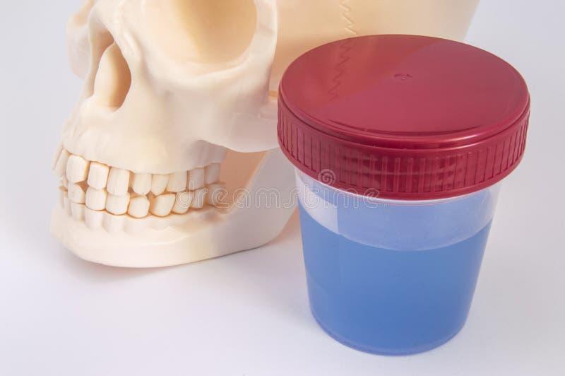 Laborancki zbiornik z próbką fluoridated woda, czaszka z szczękami i zęby, zamykamy w górę Skutek fluorek na stomatologicznych zd zdjęcie royalty free