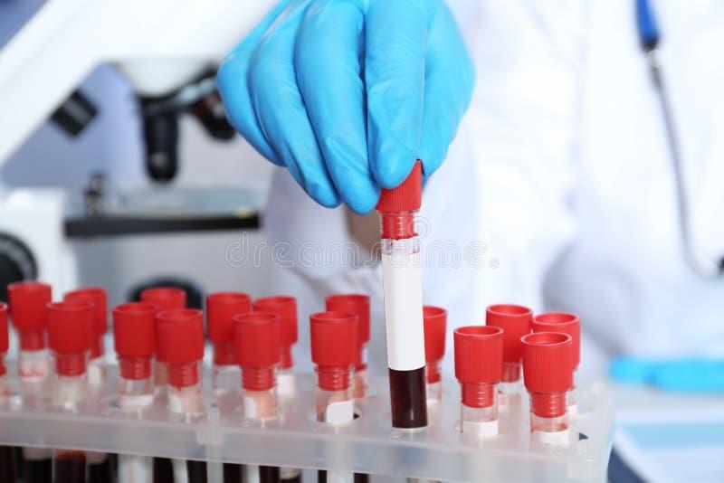 Laborant, der Reagenzglas mit Blutprobe vom Gestell für Analyse nimmt lizenzfreies stockbild