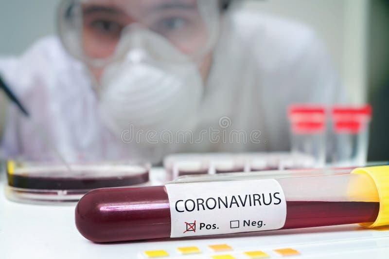 Laboratorieforskare analyserar blodprov i provrör för Coronavirus-test royaltyfri bild