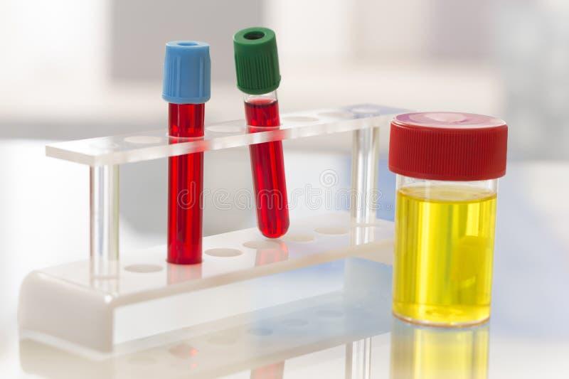 Laboratorium - Bezpłodna próbka moczu i badanie krwi obraz royalty free