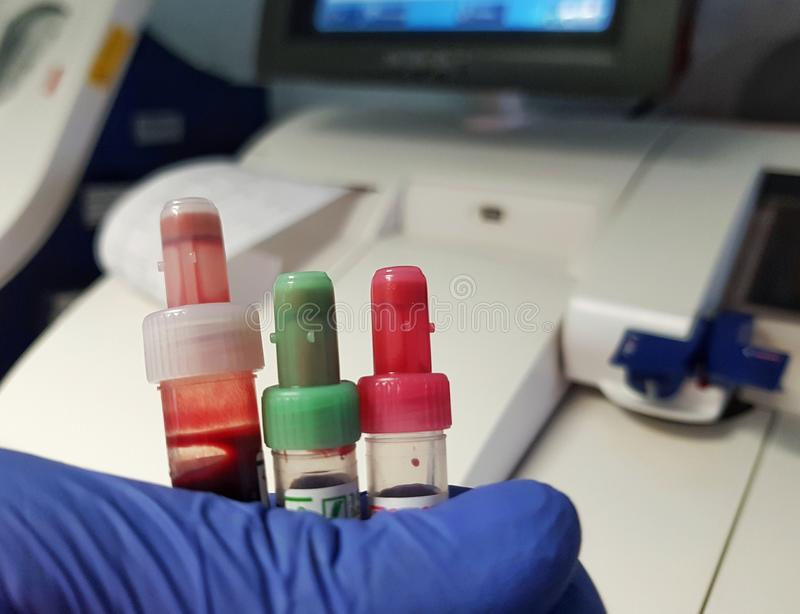 Laboratory analysis of blood. Vials with blood for testing in the laboratory analyzing background biology blue blur bottle chemical chemistry closeup color stock photography