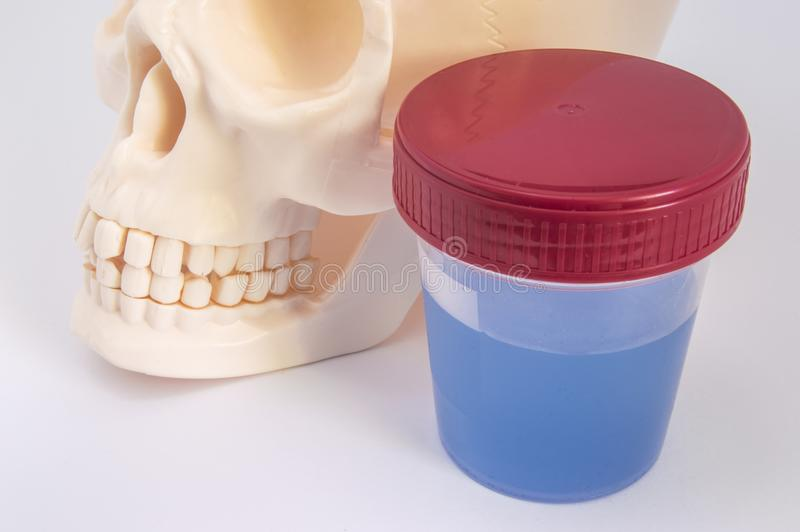 Laboratory container with sample of fluoridated water, skull with jaws and teeth close up. Effect of fluoride on dental health and royalty free stock photo