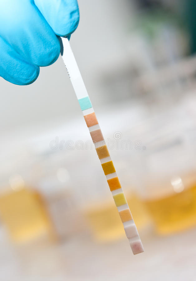 Laboratory test stripe royalty free stock photography