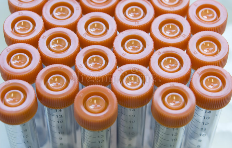 Download Laboratory Tubes In A Rack stock image. Image of conical - 2475063