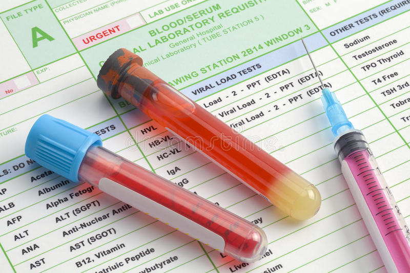 Labs Blood Work royalty free stock photography