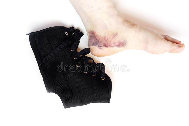 A bandage for the ankle injury with bruising of the leg and sprain, strain, isolate royalty free stock photo