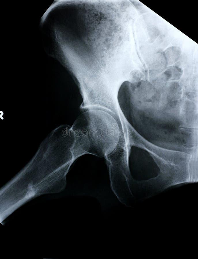 Lado do raio X/quadril imagem de stock royalty free