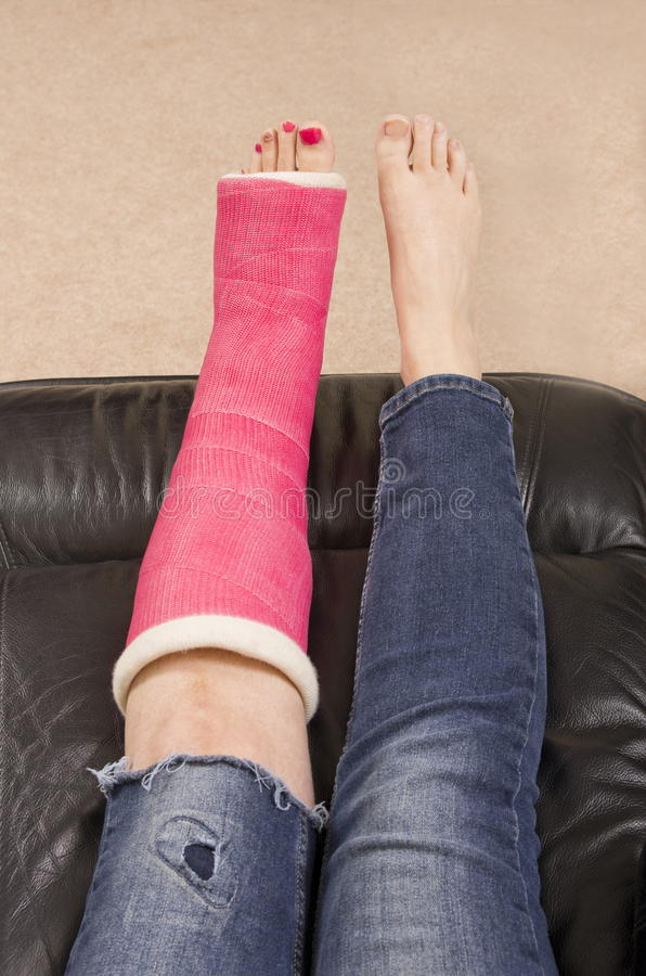 Lady with Fractured Leg stock photos