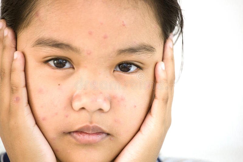 Lady to unhappy with chickenpox on face royalty free stock images