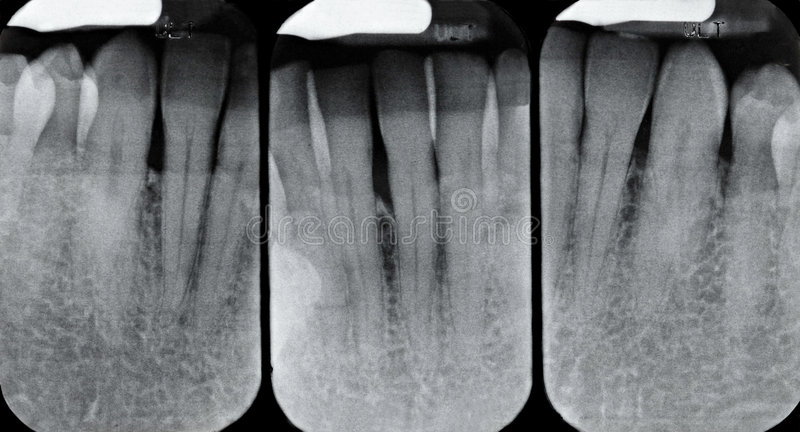 Lagere Periodontal Röntgenstralen stock foto