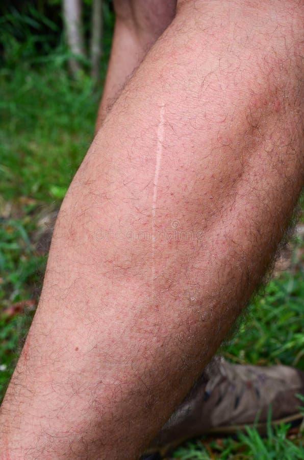 Lang dünne Narbe auf dem Bein lizenzfreies stockfoto