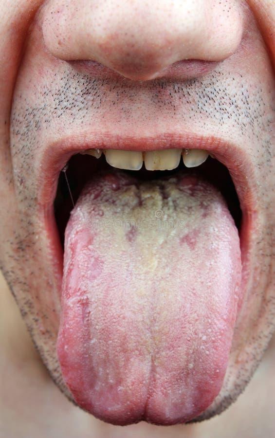 Langue de la maladie photo stock