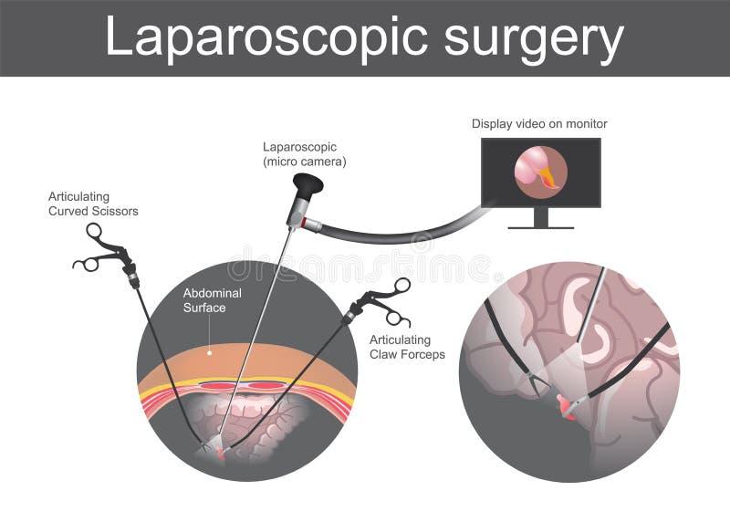 laparoscopic хирургия Техническая хирургия которую деятельность в бесплатная иллюстрация
