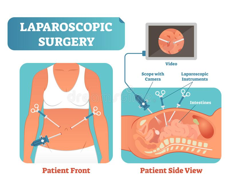 Laparoscopic surgery medical health care surgical procedure process, anatomical cross section vector illustration diagram. stock illustration