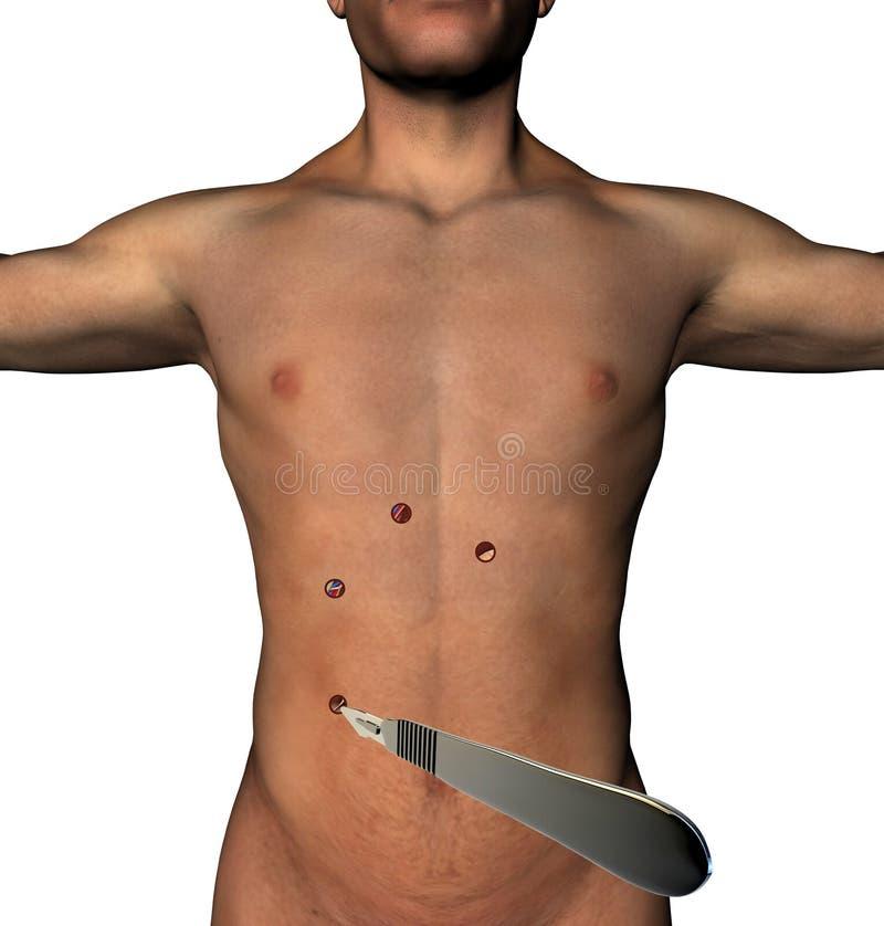 Laparoscopy operaci podbrzusza cięcie robić dziurę skalpela ciało ludzkie royalty ilustracja