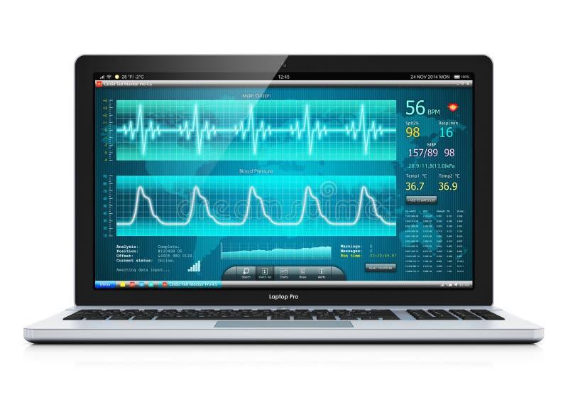 Laptop z medycznym kardiologicznym diagnostycznym oprogramowaniem royalty ilustracja