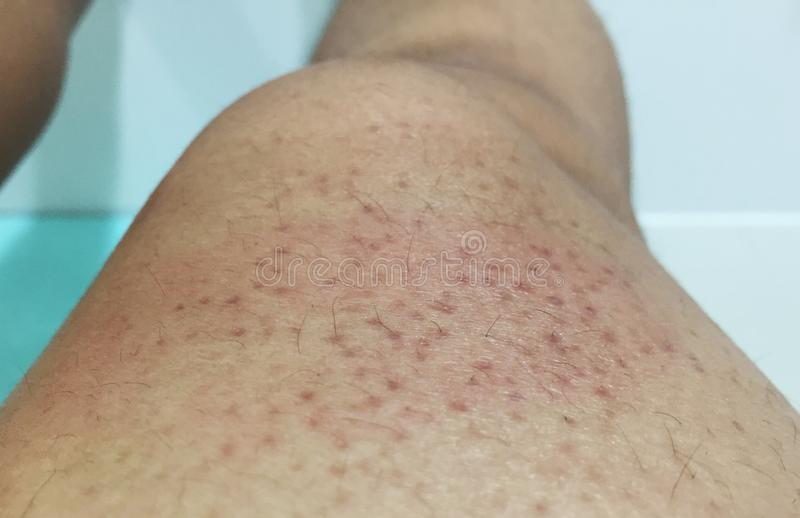 Large dark pores on the legs royalty free stock image