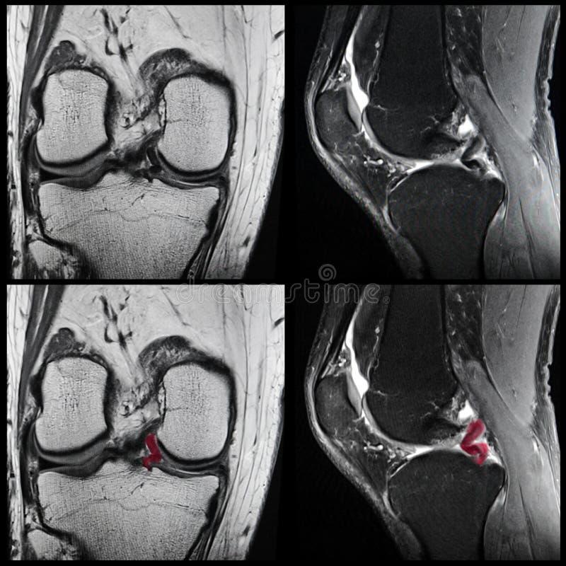Larme de Meniscal, genou, IRM photos libres de droits