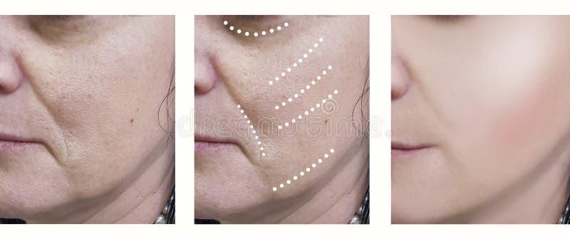 Las arrugas de la mujer antes y después de tratamientos del rejuvenecimiento del cirujano del tratamiento de la cosmetología arru fotos de archivo libres de regalías
