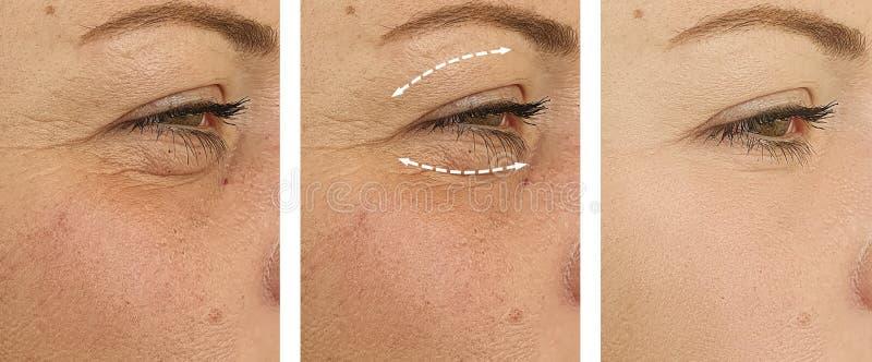 Las arrugas de la mujer hacen frente a contraste hinchado del retiro antes de la corrección de la comba de la diferencia del trat imágenes de archivo libres de regalías