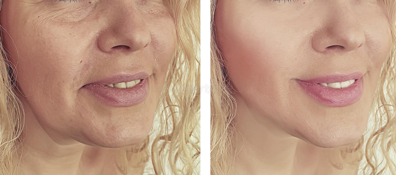 Las arrugas de la mujer hacen frente después de procedimientos de la corrección de la elevación del tratamiento del biorevitaliza fotos de archivo