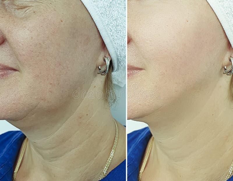 Las arrugas de la mujer hacen frente a retiro hinchado antes de la corrección de la comba de la diferencia del tratamiento imagen de archivo