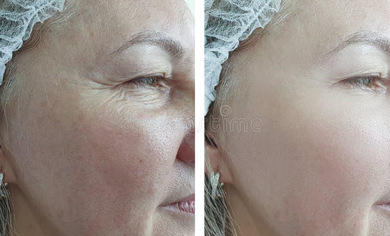 Las arrugas de la mujer hacen frente a retiro hinchado antes después de la corrección de la comba de la diferencia del tratamient imagenes de archivo