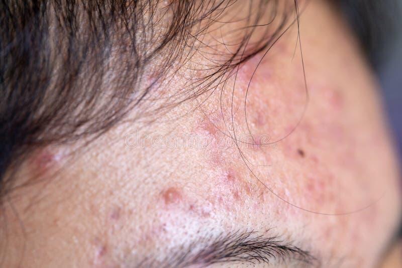 Las lesiones pelan causado por el acné en la cara en la clínica fotografía de archivo libre de regalías