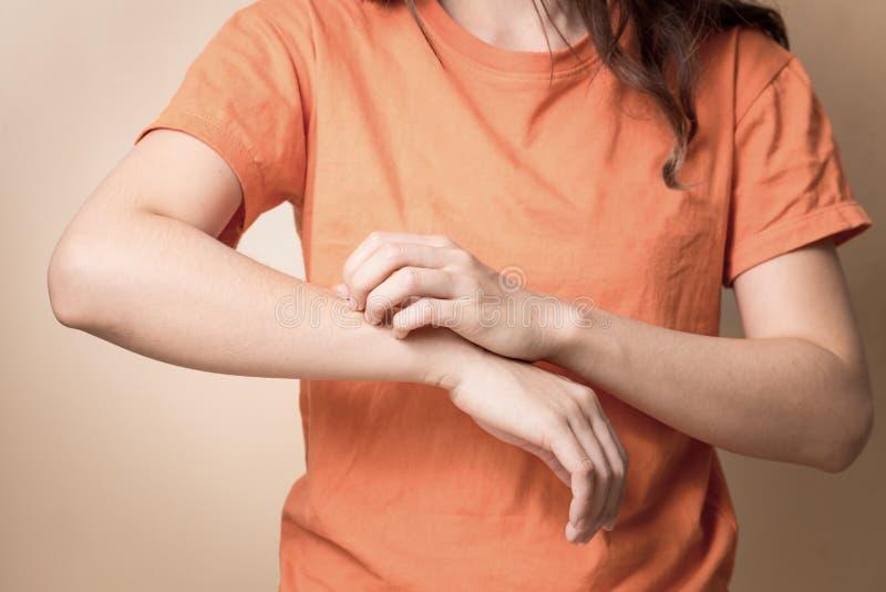 Las mujeres rasguñan el brazo que pica, brazo que pica del rasguño de las mujeres con la mano foto de archivo