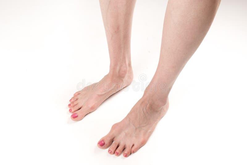 Las piernas femeninas con los pies planos transversales y las venas que resaltan imágenes de archivo libres de regalías