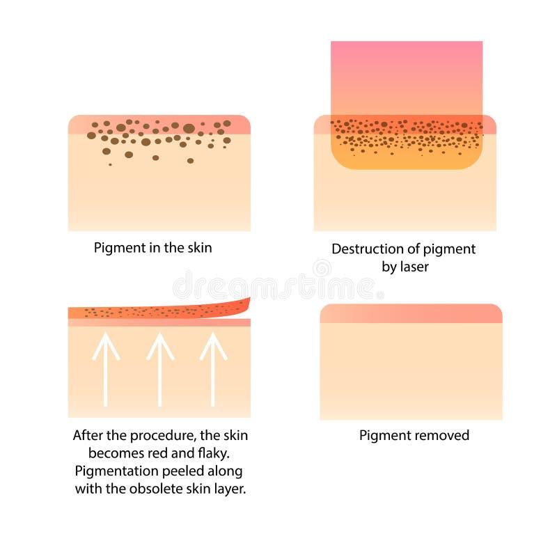 Laser-cosmetology Tillvägagångssätt för att ta bort tatueringen, fräknar, gammal pigment för mörka fläckar royaltyfri illustrationer
