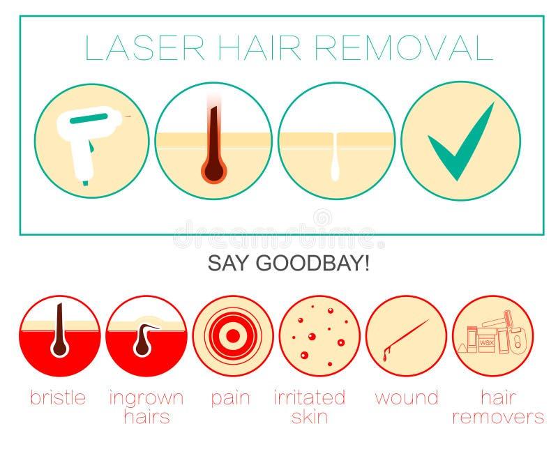 Laser-Haarabbau Ikone, Enthaarung und epilation stock abbildung