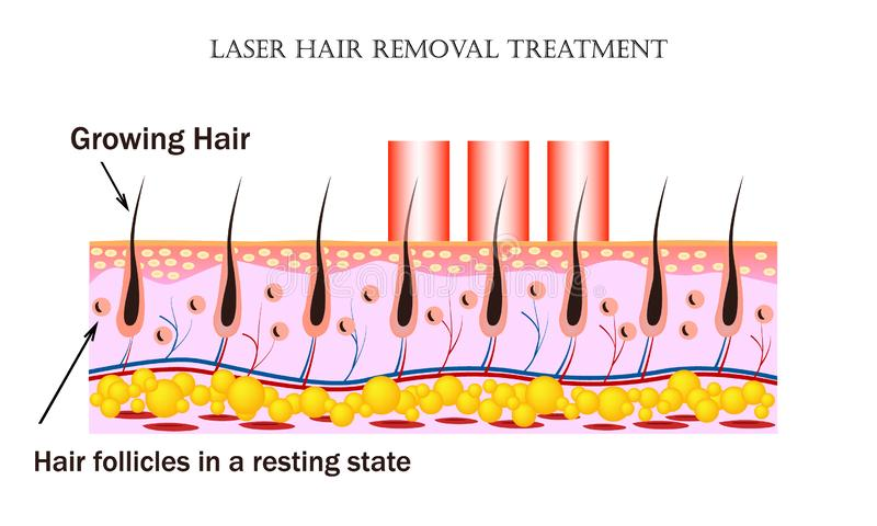 Laser Hair Removal treatment. Procedure causes damage to the hair follicle without hurting the skin tissue and hair. Laser Hair Removal treatment. Laser beam of vector illustration