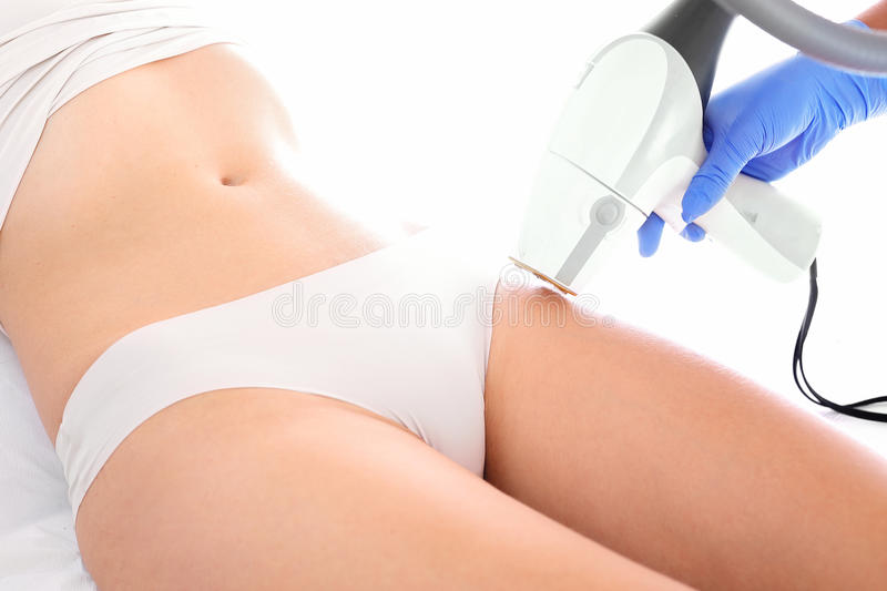 Laser hair removal. Woman on laser hair removal treatments thighs and bikini area stock photos