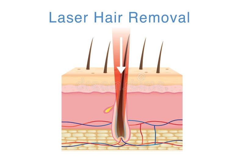 Hair Follicle Treatment With Medical Method  Stock Vector
