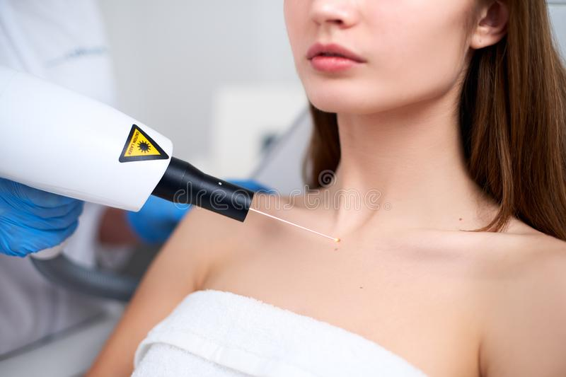 Laser mole removal on a woman`s chest in a beauty salon. Hardware cosmetology. Beautician doctor removing birthmark or. Laser mole removal on a woman`s chest in stock images