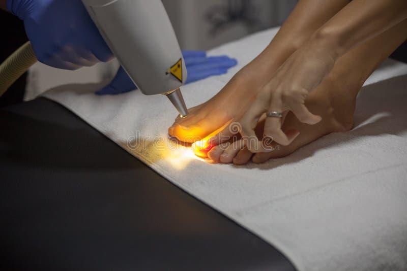 Laser nail fungus treatment royalty free stock photo