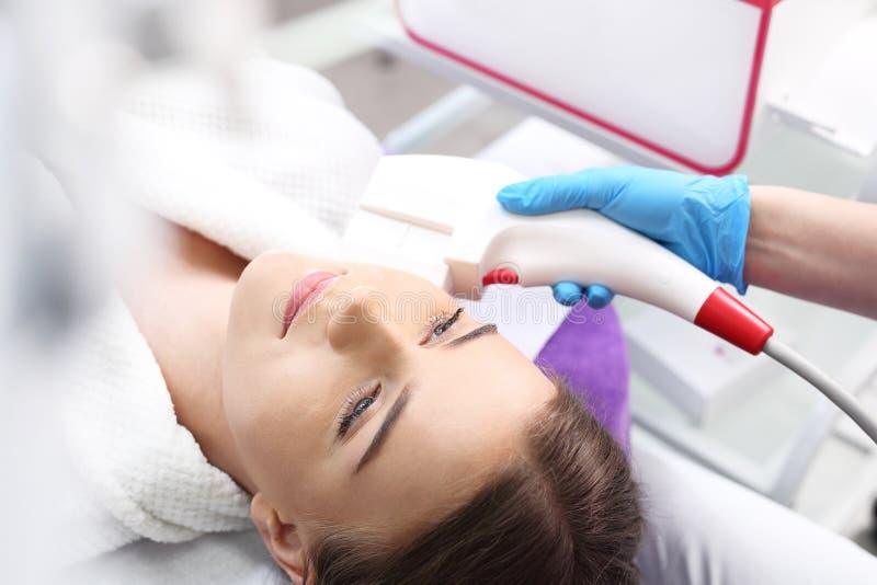 Laser peeling, acne treatment. stock photo