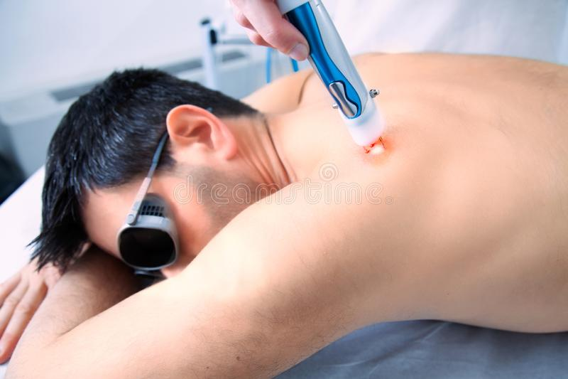 Laser skin treatment therapy with a dark hair man. Close up of laser skin treatment therapy with a dark hair man with protect glasses on eyes stock photo