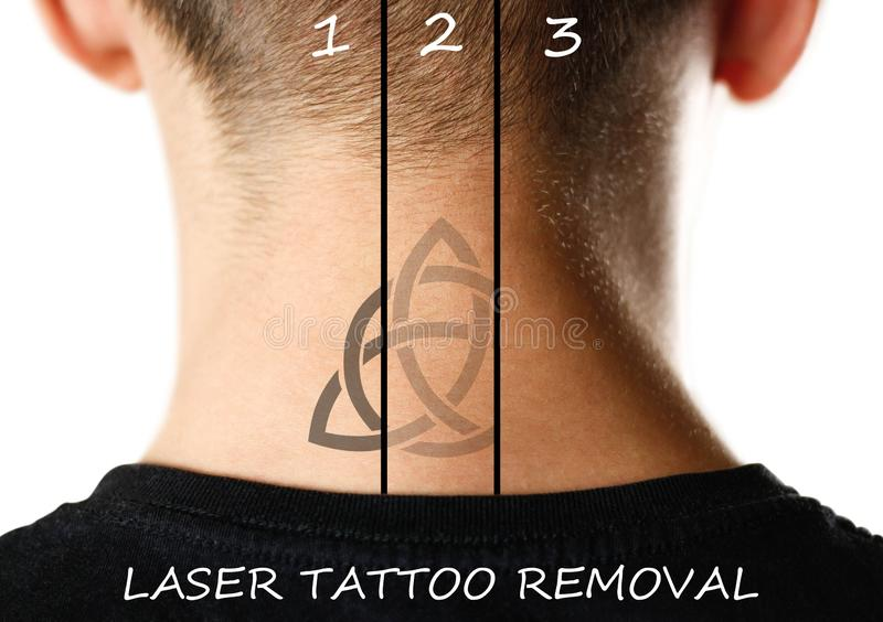 Laser tattoo removal. Close up. on white background royalty free stock image