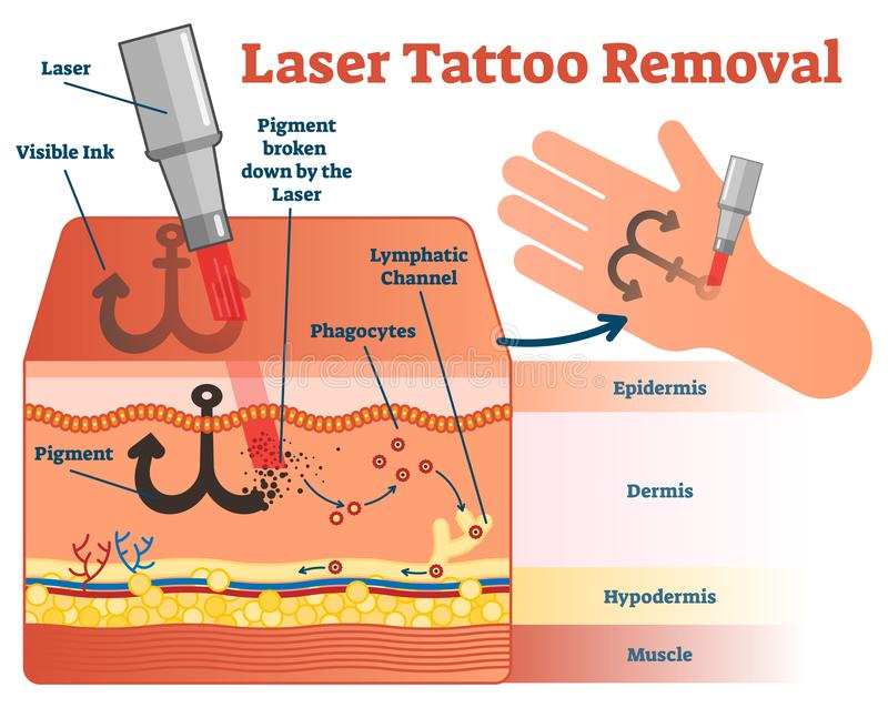 Tattoo Removal Stock Vector  Illustration Of Different