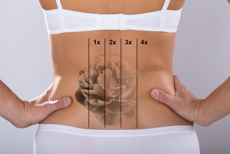 Laser tatuerar borttagning på höft för kvinna` s royaltyfria foton