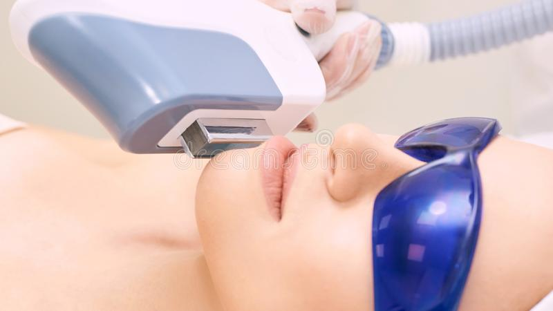 Laser unwanted hair cosmetology procedure. Beautiful young girl. Blue glasses. Face treatment. IPL machine.  stock images