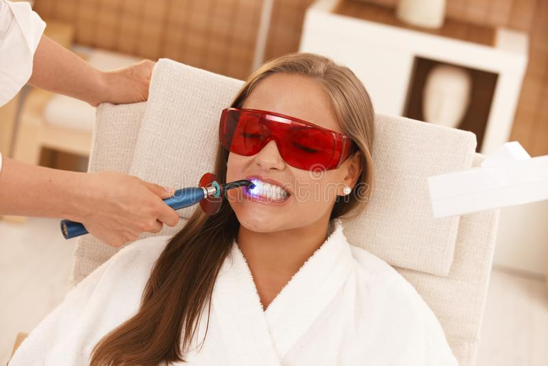 Laser-Zahnweiß werden stockfotografie